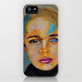 Heterochromia boy by ilya konyukhov (c) iPhone Case