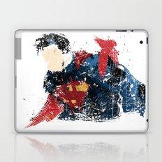 $uperman Laptop & iPad Skin