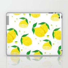 Big Lemon pattern Laptop & iPad Skin