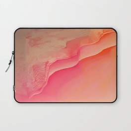 Pink Navel Laptop Sleeve