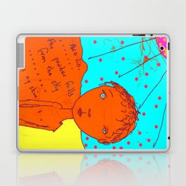 Itch in Colour Laptop & iPad Skin