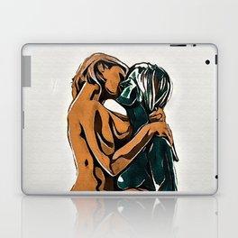 LO Laptop & iPad Skin