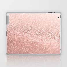 ROSEGOLD Laptop & iPad Skin