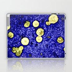 Symphony of Night Laptop & iPad Skin