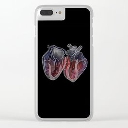 Beat Clear iPhone Case