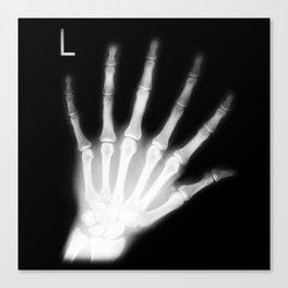 Extra Digit X-Ray Canvas Print