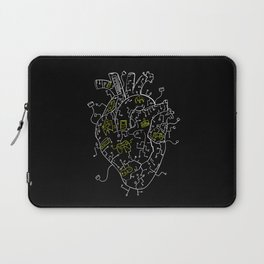 Gaming Control Tools | Heart Laptop Sleeve