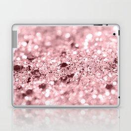 Rose Gold Blush Girls Glitter #1 #shiny #decor #art #society6 Laptop & iPad Skin