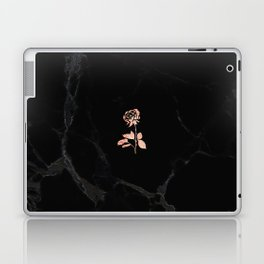 Forever Petal (Black Rose) Laptop & iPad Skin