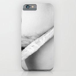 Under My Skin iPhone Case