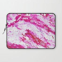 Rose Quartz 2 Laptop Sleeve