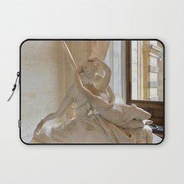 A Kiss is so Complicated Laptop Sleeve