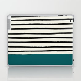 Dark Turquoise & Stripes Laptop & iPad Skin