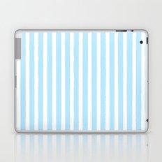 PIN STRIPES Laptop & iPad Skin