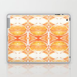 Aelia Laptop & iPad Skin