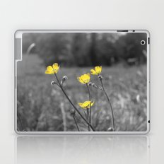 Summers Beauty Laptop & iPad Skin