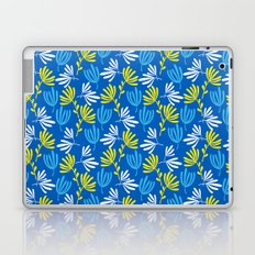 Sweet Blue Laptop & iPad Skin