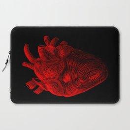 Tell Tale Heart Laptop Sleeve