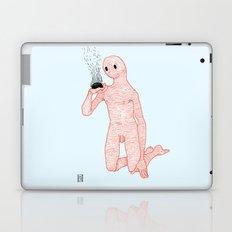 And Still It Burns Laptop & iPad Skin