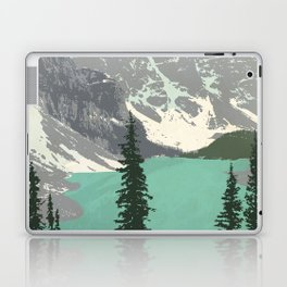 Moraine Lake Poster Laptop & iPad Skin