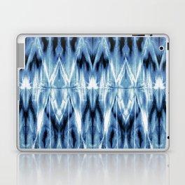Blue Satin Shibori Argyle Laptop & iPad Skin