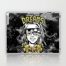 TEENAGE SPACE DREAMS Laptop & iPad Skin