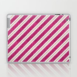 Neon pink faux gold glitter modern stripes pattern Laptop & iPad Skin