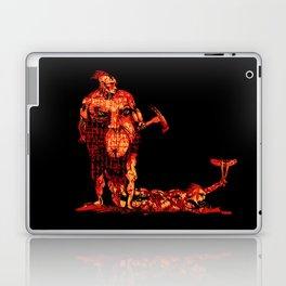 loperamide Laptop & iPad Skin