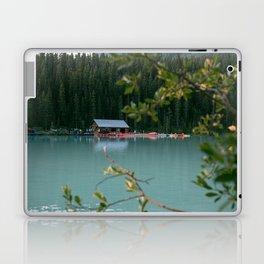 Lake Louise Lodge Laptop & iPad Skin