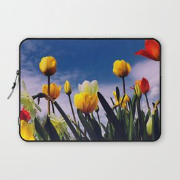 Relax With The Tulips Laptop Sleeve