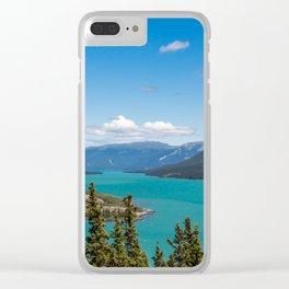 Tagish Lake Clear iPhone Case