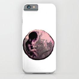 The FETUS iPhone Case