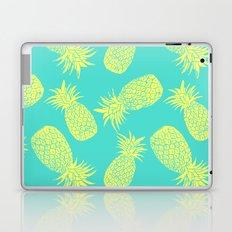 Pineapple Pattern - Turquoise & Lemon Laptop & iPad Skin