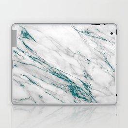 Gray Marble Aqua Teal Metallic Glitter Foil Style Laptop & iPad Skin