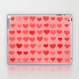 Pink Valentines Love Hearts Laptop & iPad Skin