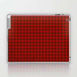 MacDougall Tartan Laptop & iPad Skin