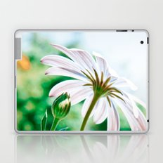 Sunbaking Laptop & iPad Skin