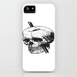 Frontal Lobotomy Skull Of Phineas Gage Vector Isolated iPhone Case