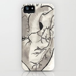 Heart in black and white iPhone Case