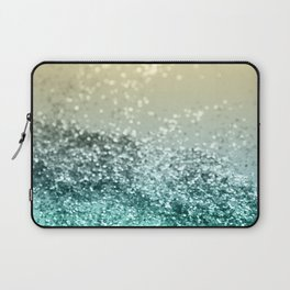 Lemon Twist Beach Glitter #2 #shiny #decor #art #society6 Laptop Sleeve