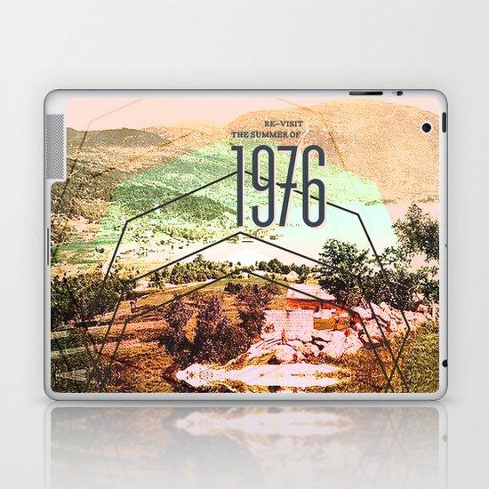 Summer of 1976 Laptop & iPad Skin