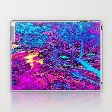 Psychedelic Mess Laptop & iPad Skin