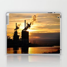 At What Cost Laptop & iPad Skin