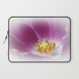 Tulpe Laptop Sleeve