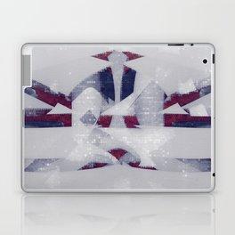 hating bad technology Laptop & iPad Skin