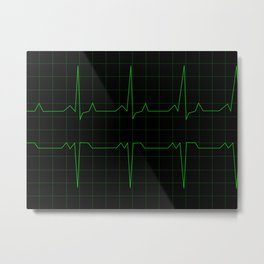 Normal Heart Rhythm Metal Print