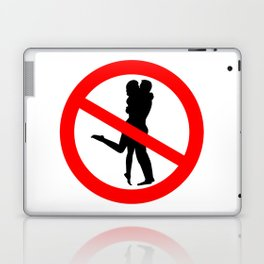 Kiss Road Sign Laptop & iPad Skin