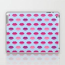 Kissy kiss kiss Laptop & iPad Skin