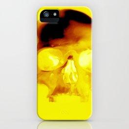 Yellow Skull iPhone Case