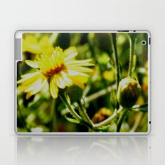 Sun Lit Flowers Laptop & iPad Skin